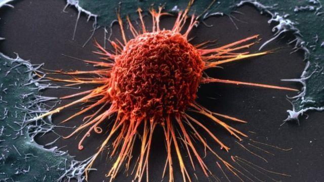 Ditemukan obat baru 'yang efektif sembuhkan' pasien kanker stadium ...