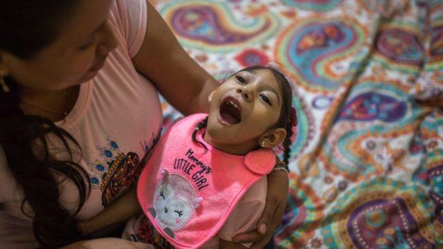Paciente con hidrocefalia en Brasil como consecuencia del zika
