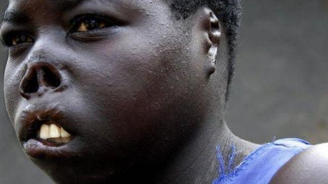 Auma Consolata, une ancienne détenue de l'Armée de Résistance du Seigneur, porte les cicatrices de sa rencontre avec les rebelles qui lui ont coupé les lèvres, le nez et les oreilles avant qu'elle ne puisse s'échapper pour rejoindre sa famille (2 septembre 2006)