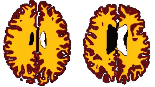 Being overweight 'ages people's brains'