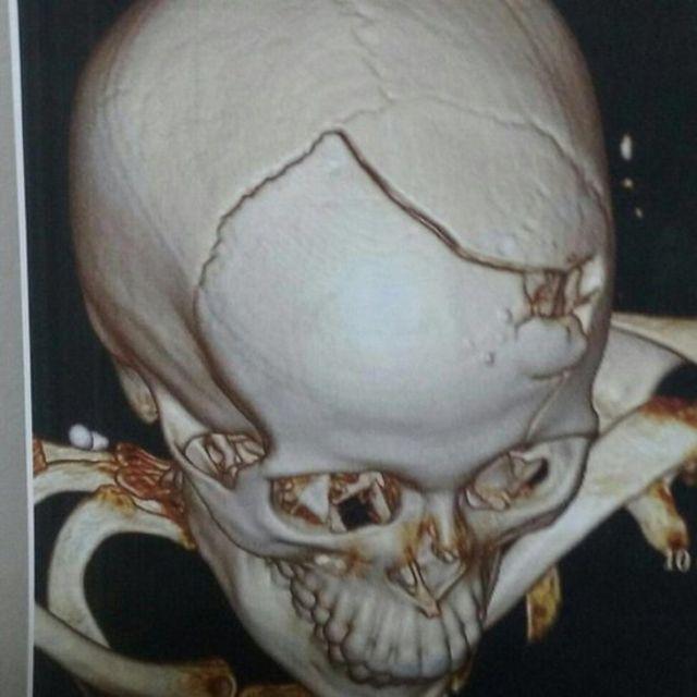 Ressonância magnética do crânio de Anna Paula Cotta