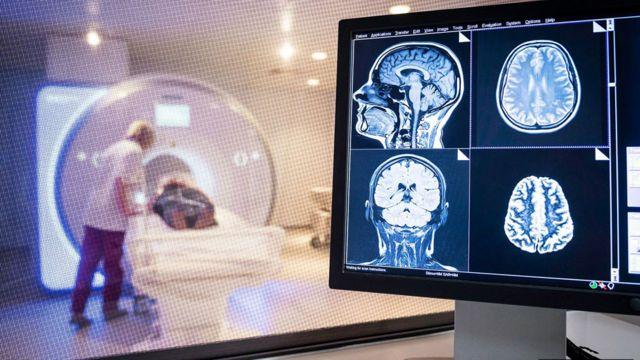 El personal de radiología realiza una resonancia magnética de un cerebro.