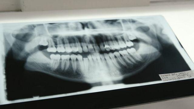 Raio-x da arcada dentária de Alex