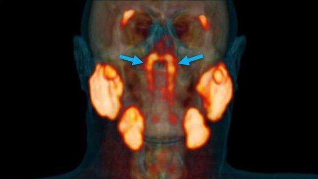 Трубчасті залози, показані блакитними стрілками, поруч з іншими слинними залозами, виділеними помаранчевим кольором