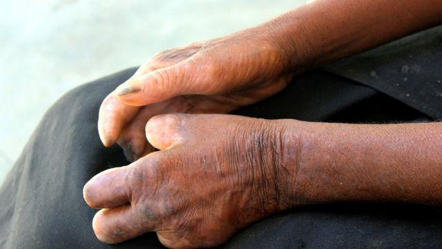 Manos de una persona con lepra