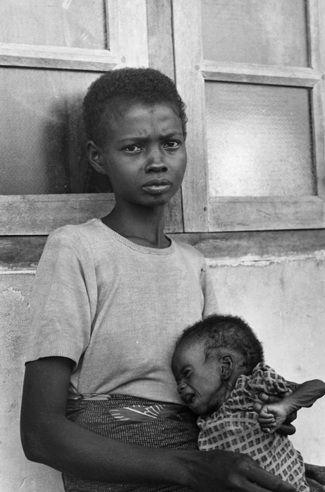 Mujer con su bebé en extrema desnutrición.