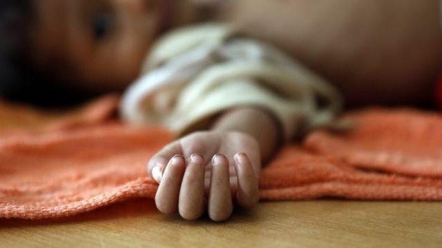 Criança desnutrida no Iêmen; estudo internacional prevê 6,7 milhões a mais de crianças desnutridas no mundo por causa da pandemia