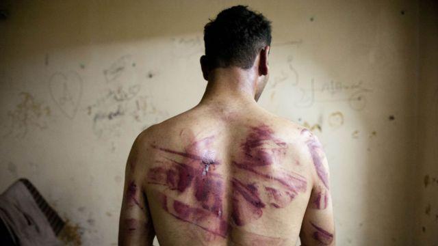 Exprisionero de una cárcel en Alepo en Siria con marcas rojas de quemaduras y heridas en la espalda