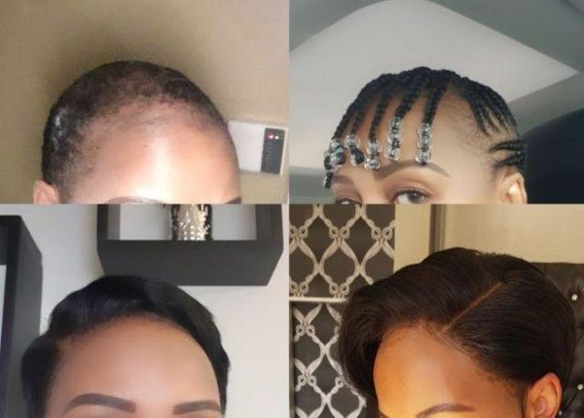 Boitumelo Monyaki nous a confié que la perte de ses cheveux a affecté son estime de soi. Elle a toutefois fini par se faire à l'idée, celle que ses cheveux ne pourraient jamais repousser comme avant.