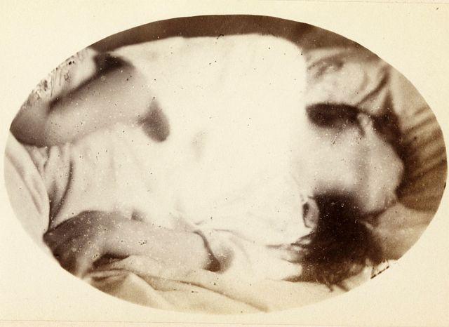"""Una de las imágenes de """"Iconographie Photographique de la Salpêtrière"""" identificada como: """"Ataque: período epileptídico. Placa XVII""""."""