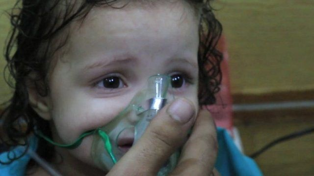 A young girl receiving oxygen after the attack