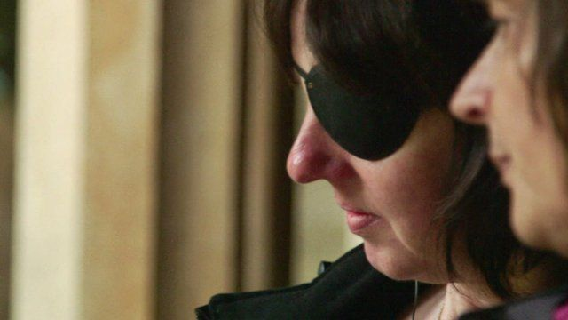 Woman fitted with a bionic eye