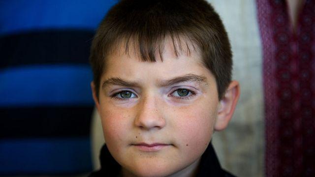 Primer plano de Dennis, niño ucraniano de 9 años enfermo de cáncer
