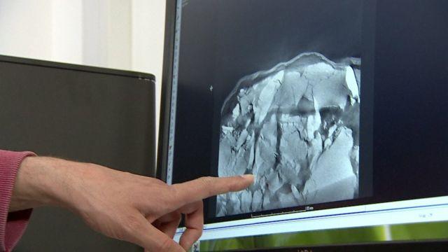 Closes de imagens escaneadas do crânio