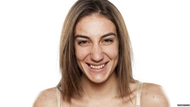 Mujer con acné