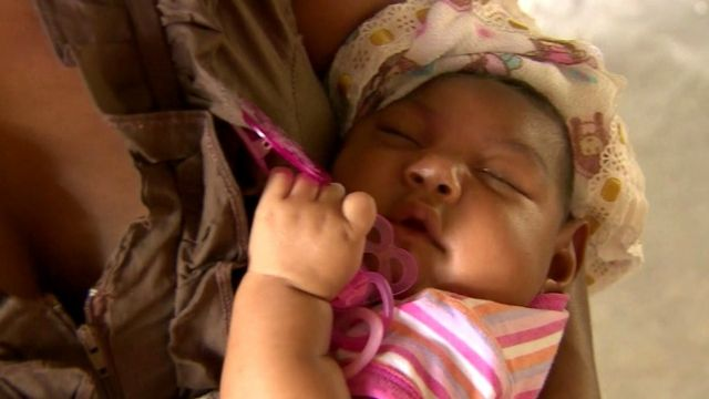 Child born with effects of the Zika virus