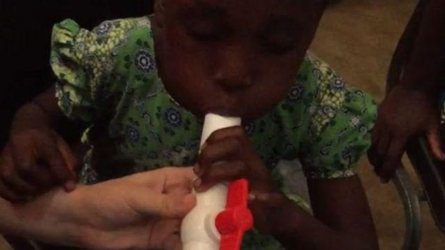Kipimo cha pumzi kugundua Malaria chatoa matumaini