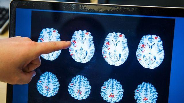 Radiografía de un cerebro