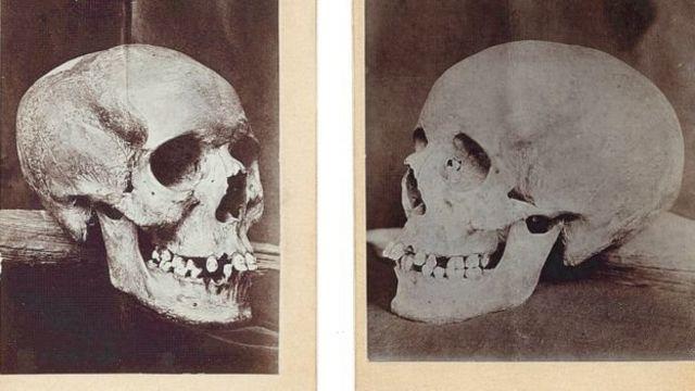 หัวกะโหลกของลิเลียสถูกถ่ายภาพเก็บไว้ ก่อนที่มันจะหายสาบสูญไปในช่วงศตวรรษที่ 20