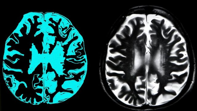 Bir ilaç şirketi yeni ilacının Alzheimer'ı yavaşlattığını söylüyor