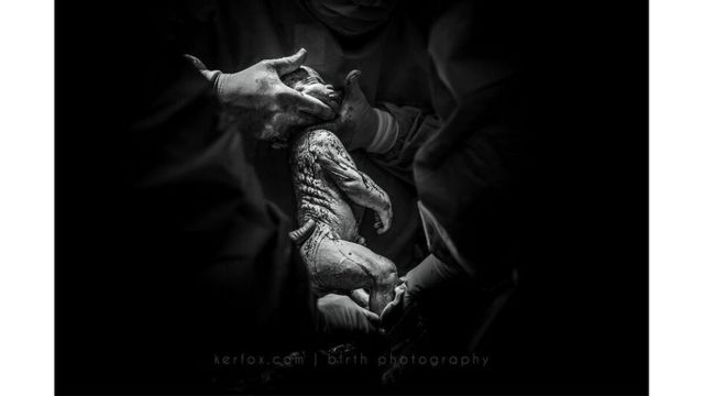 """Mención especial: """"17 años esperando: un milagro de """"no-fertilidad"""", de Ker-Fox Photography"""