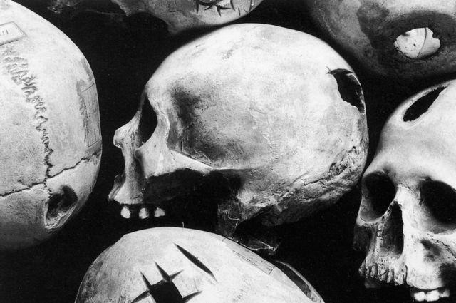 Modelos de cráneos peruanos trepanados