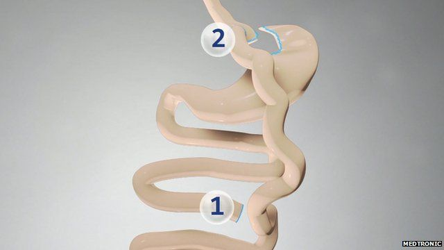 Bariatric surgery image