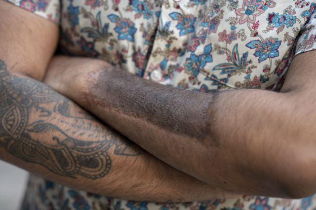 သူ့ရဲ့ ဘယ်လက်မောင်းက အရေပြားနဲ့ ယောက်ျားလိင်အင်္ဂါကို ဖန်တီးယူခဲ့ပါတယ်။