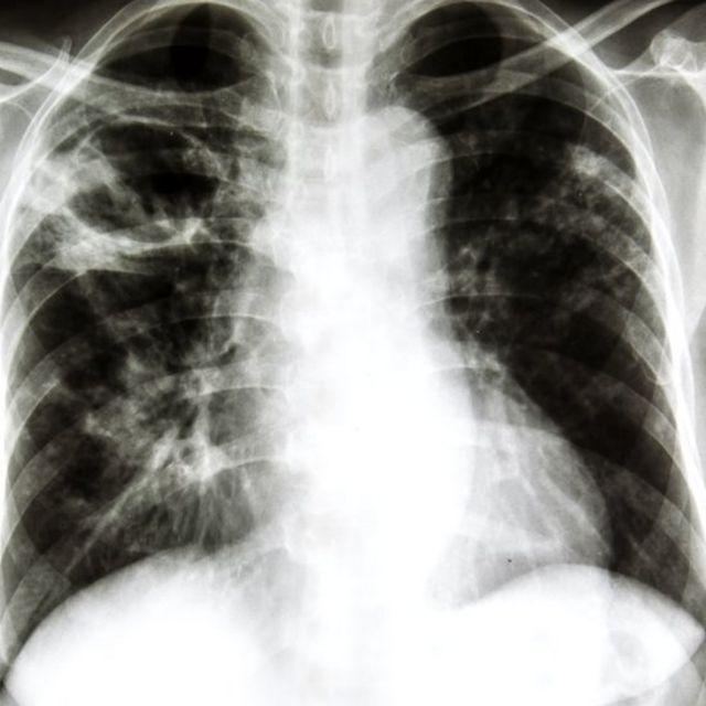 Одно из исследований показало, что витаминные добавки не только не защищают от болезней, но и повышают уровень заболеваемости раком среди курильщиков