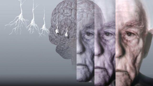 Ilustração conceitual mostra paciente perdendo capacidade cognitiva