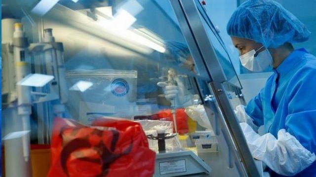 بیش از یکصد مورد تحقیقات در زمینه تولید واکسن کرونا در سراسر جهان در حال انجام است