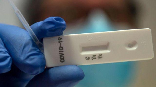 Roche, geliştirdiği yeni test için Amerikan Gıda ve İlaç Dairesi'nden acil kullanım onayı aldı