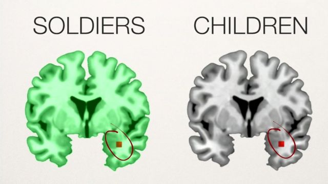 Scientists say that the brain structures of traumatised soldiers and children change in the same way.
