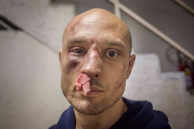 Lutador de MMA com ferimentos