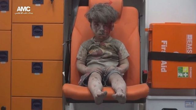 Injured boy covered in dust sitting in an ambulance