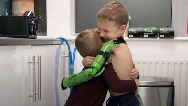 Jacob Scrimshaw abraçando o irmão