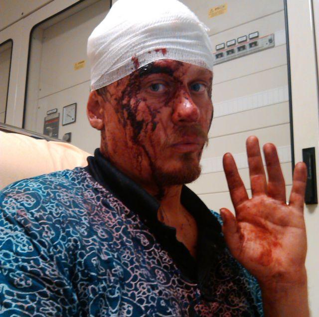 Воротников в больнице после драки с итальянскими анархистами. Июнь 2014, Венеция