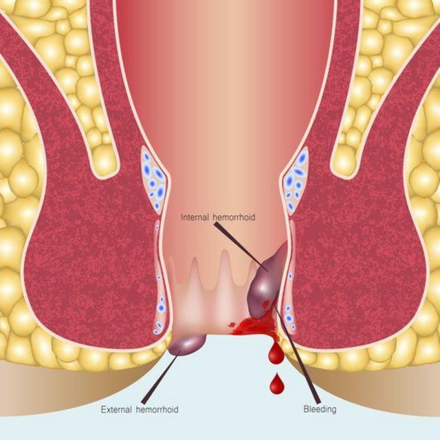 Diagrama de hemorroides