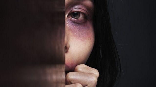 Женщина со следами побоев на лице