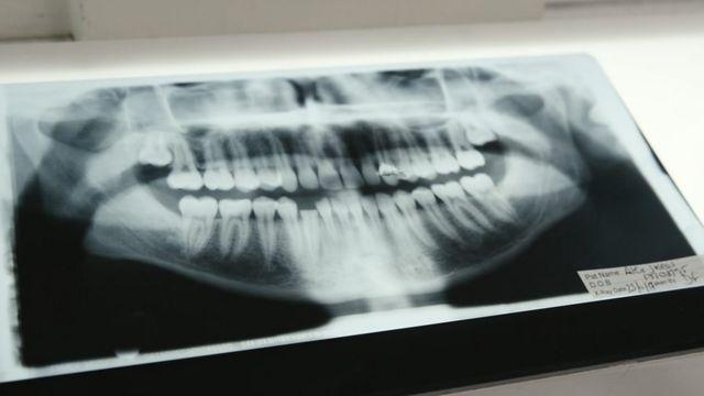 X光片顯示阿歷克斯被打傷的牙齒