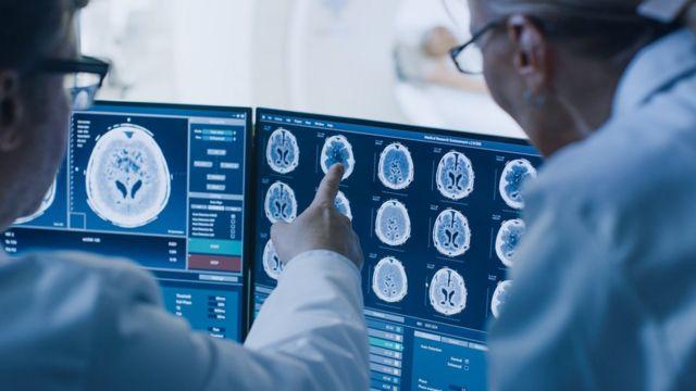 Médicos frente a imágenes de Resonancia Magnética.