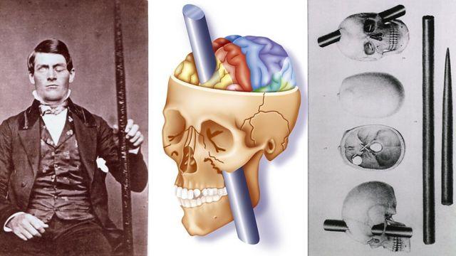 菲尼亞斯·蓋奇是人類醫學史上的奇蹟之一,對腦神經科學做出了無可替代的貢獻