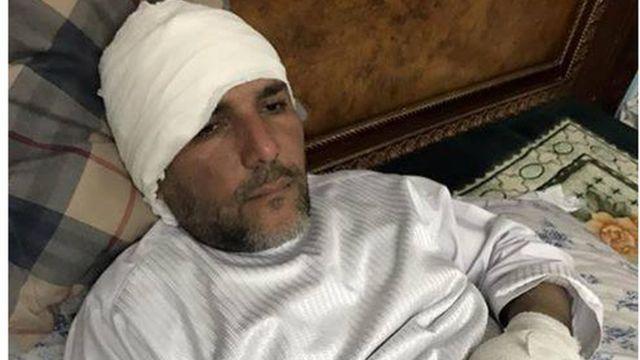 په برید کې افغان سوداګر حاجي محمد صدیق مهمند هم ژوبل شوی