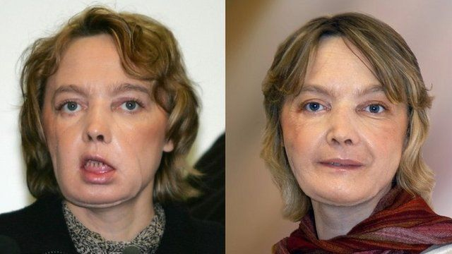 Isabelle Dinoire in early 2006 and after further surgery eight months later