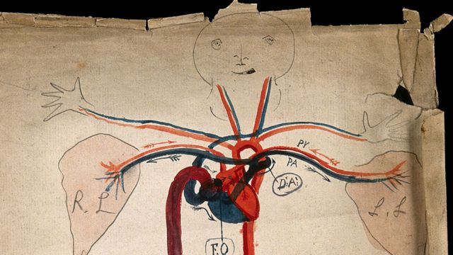 Simpático diagrama del sistema circulatorio de 1853, cuando recién había sido descubierto, que muestra el corazón y las arterias, con una cara y manos de estilo de dibujos animados. Dibujo en acuarela de J.C. Whishaw.