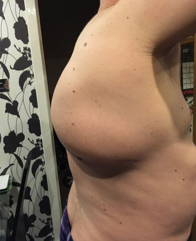 Imagem do tumor de Kevin