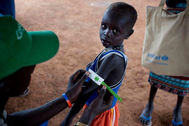 Güney Sudan'da açlık çeken çocuk