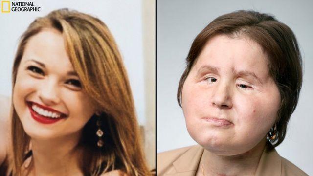 Imagem mostra dois momentos de Katie Stubblefield, a mais jovem americana a passar por um transplante de rosto. À esquerda, ela aparece sorridente, antes da tentativa de suicídio que a fez perder grande parte do rosto. À direita posa com sua nova face, recebida de uma mulher que havia morrido três dias antes.