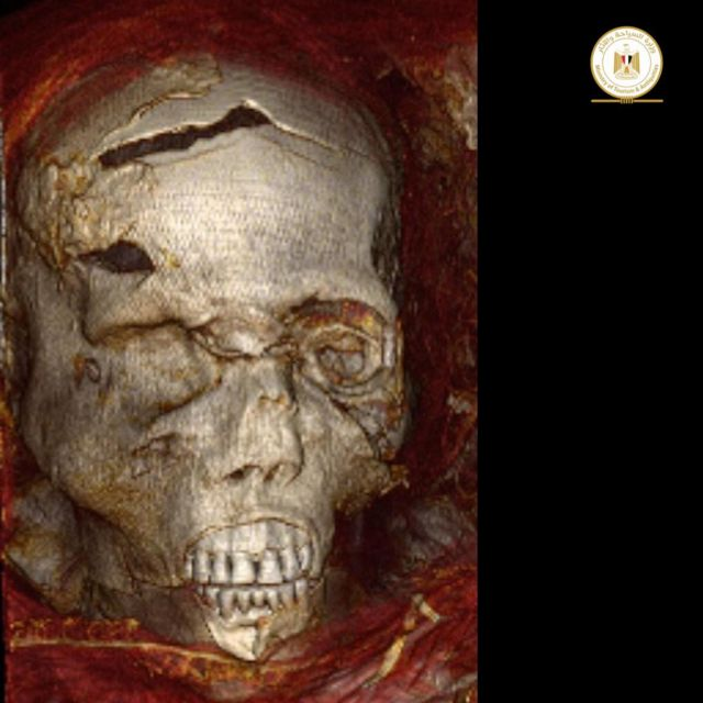 A picture of the mummy of King Seknen Ra