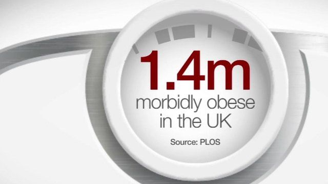 1.4m morbidly obese in the UK. Source: PLOS